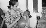 Đời sống - Bé gái 8 tháng tuổi bụng trướng như cái trống và lời thỉnh cầu đẫm nước mắt của cặp vợ chồng khốn khổ