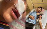 Chuyện học đường - Vụ nam sinh Hà Nội bị bạn đánh gãy răng, khâu 7 mũi: Ban giám hiệu trường học nói gì?