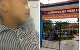 Chuyện học đường - Vụ học sinh lớp 1 nghi bị bạn ném bị sắt vào mắt: Đang thu thập chứng cứ