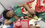Sức khỏe của bé trai sơ sinh bị gãy xương đùi khi sinh mổ giờ thế nào?