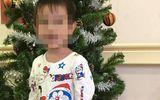 Vì sao bé trai mới 3 tuổi đã bị đột quỵ xuất huyết não?