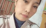 Tiêm filler giá rẻ, cô gái Hà Nội nuốt trái đắng vì gương mặt biến dạng