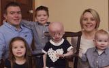 Xót xa hình ảnh bé 8 tuổi nhưng mang hình hài bà lão 70 tuổi do căn bệnh hiếm gặp