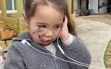 Đời sống - Nhói lòng câu nói của bé gái 3 tuổi sau trận tấn công kinh hoàng của chó pit bull