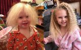 Sức khoẻ - Làm đẹp - Mắc hội chứng hiếm gặp, bé gái người Anh sở hữu mái tóc y hệt thiên tài Vật lý Einstein