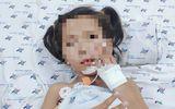Tin tức đời sống ngày 26/1: Bé gái 7 tuổi mắc bệnh lạ, đột ngột không nói