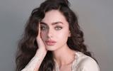 """Tin tức giải trí - Sở hữu """"gương mặt đẹp nhất thế giới"""", người mẫu Israel vẫn bị miệt thị là """"nữ hoàng xấu xí"""""""