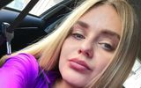 """Cộng đồng mạng - Cựu nữ hoàng sắc đẹp bị bệnh viện sa thải vì """"quá xinh đẹp"""""""