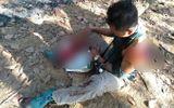 Tin tức đời sống ngày 3/3: Người đàn ông bị bò tót húc nát vai và chân