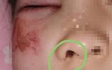 Nữ sinh 8 tuổi bị cô giáo đánh suýt mù mắt, nguyên nhân gây phẫn nộ