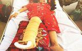 Vụ 2 học sinh bị xế hộp tông gãy chân, tay: Truy tìm tài xế gây tai nạn, bỏ chạy