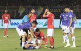 Hà Nội FC báo tin không vui về Hùng Dũng, HLV Park Hang-seo lo lắng vào thăm lúc nửa đêm