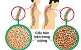 Xã hội - Nguyên nhân, cách điều trị và dự phòng bệnh loãng xương