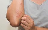 Xã hội - Tìm hiểu các phương pháp điều trị bệnh viêm da cơ địa
