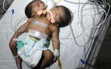 Kỳ lạ bé sơ sinh có hai đầu ở Ấn Độ