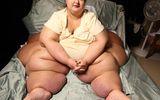 """Giảm cân """"ngoạn mục"""" hơn 270 kg trong 5 năm"""