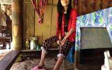 Cảm thương số phận của người đàn bà tật nguyền trong căn nhà dột nát