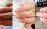 Bệnh á sừng và giải pháp điều trị hiệu quả, an toàn