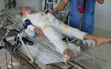 Bé gái bị ngã trong nồi cám lợn bỏng sâu 65% đã qua đời