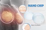 Tư vấn - Những ưu điểm nổi trội của phương pháp thẩm mỹ nâng ngực nano chip