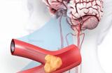 Sức khoẻ - Làm đẹp - Khỏe mạnh lại sau tai biến nhờ phương pháp mới phục hồi chức năng bằng thảo dược + vật lý trị liệu