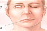 Không phải lo lắng về liệt, méo miệng, nói ngọng, mờ mắt sau TAI BIẾN MẠCH MÁU NÃO nhờ...