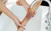 Cách sơ cứu và điều trị cho người bị bỏng