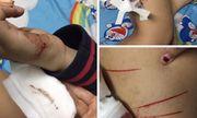 Nữ sinh Sài Gòn tố bị kẻ biến thái rạch đùi trong đêm