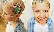 Nụ cười lạc quan của bé gái 7 tuổi mắc bệnh rụng hết tóc