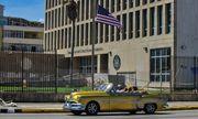 """Cuba: Cáo buộc của Mỹ về """"tấn công sóng âm"""