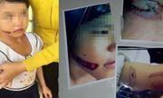 Bé gái 7 tuổi bị dí sắt nóng vào mặt vẫn đang ở cùng cha và mẹ kế?
