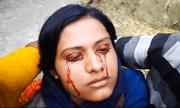Cô gái trẻ mắc bệnh lạ 'đổ mồ hôi ra máu' khiến các bác sĩ phải 'bó tay'