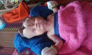 Xót thương bé 2 tháng tuổi bị khuyết não đang chờ một phép nhiệm màu