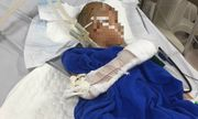 Bé trai 9 tuổi bị nam thanh niên chém liên tục vào đầu