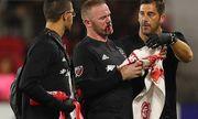 Rooney chảy máu, khâu 5 mũi sau khi ghi bàn thắng đầu tiên cho DC United