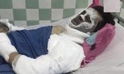 Vụ Việt kiều bị tạt axit, cắt gân chân: Nạn nhân có thể ăn uống, trò chuyện