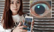 Dùng điện thoại màn hình quá sáng, cô gái trẻ bị thủng 500 lỗ ở giác mạc