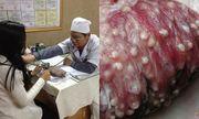 Bộ y tế hướng dẫn người dân cách phòng chống nhiễm sán lợn hiệu quả
