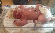 Bé gái sơ sinh nặng gần 7 kg, chiều dài tương đương trẻ 6 tháng tuổi