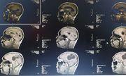 Mổ lấy ổ sán khổng lồ trong não người đàn ông thích ăn tiết canh
