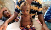 113 triệu người trên toàn thế giới đương đầu với nạn đói