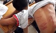 Bé trai bị bố đánh đến nhập viện: