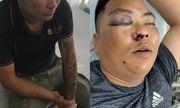 Vụ cựu đặc công đánh nhóm người đòi nợ thuê bầm dập: Hé lộ danh tính 3 nhân viên