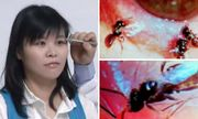 Kỳ lạ người phụ nữ có 4 con ong sống trong mắt