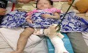 Khởi tố mẹ nuôi đánh gãy chân bé gái một tuổi vì không chịu ăn