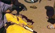 Hà Nội: Thiếu tá CSGT bị nam sinh tông trọng thương khi đang làm nhiệm vụ