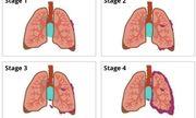 Ung thư phổi giai đoạn 3 và giai đoạn 4 khác nhau như thế nào?