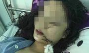 Tin tức thời sự 24h mới nhất ngày 22/4/2019: Thiếu nữ 18 tuổi xinh đẹp bị 3 cô gái dùng dao rạch mặt