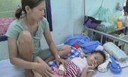 Bé gái ở Kon Tum bị chó nhà nuôi cắn hàng chục vết quanh cổ qua cơn nguy kịch