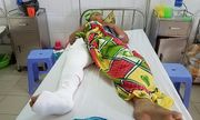 Quảng Nam: Cán bộ địa chính bị tông trọng thương khi đuổi theo xe chở cát lậu